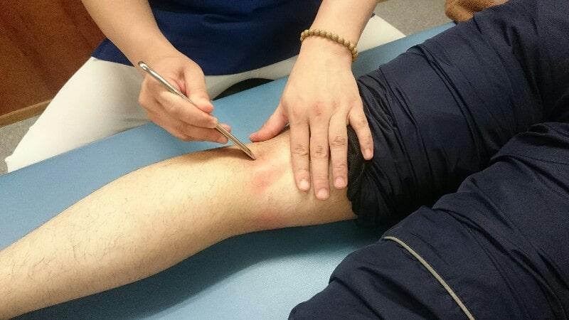 グラストンによる施術の様子:皮膚が赤くなっています